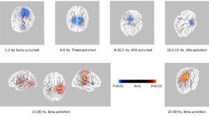 Fig 1 hersenactiviteit tijdens paniekaanval